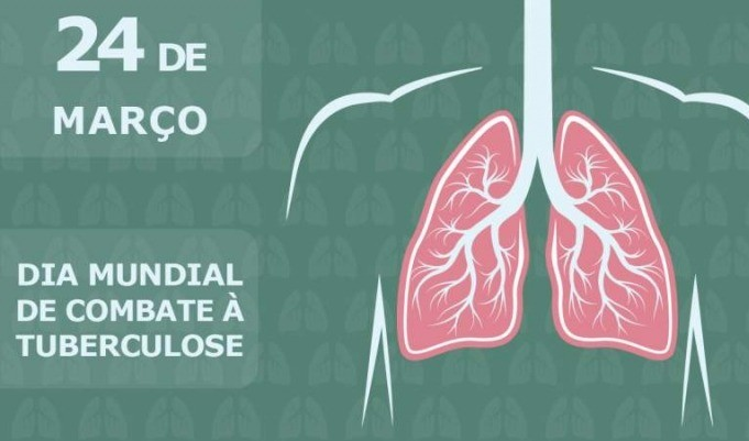 Foto de capa da notícia: 24 de março: Dia de combate à Tuberculose